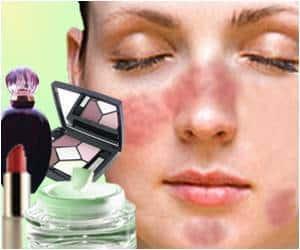 Fragrance-allergy